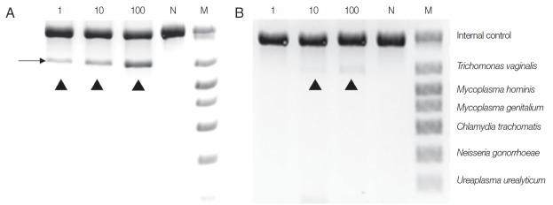 Comparison between Chelex ® 100 (A) and QIAamp ® DNA Mini Kit (B) as DNA extraction methods for PCR using a Seeplex ® ACE Detection Kit. T. vaginalis trophozoites (1, 10, 100) were added to the urine of a normal male and incubated overnight before DNA extraction. N, negative control (DW); M, marker; arrowhead, T. vaginalis product.
