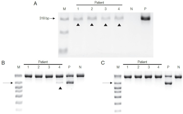 Two PCR assay systems were used with DNA isolated from the urine of the 4 patients by 2 DNA extraction methods. (A) All 4 urine samples gave positive bands in HY-PCR using DNA extracted with Chelex ® 100. (B, C) PCR with Seeplex ® ACE Detection Kit. (B) Only one of the 4 samples gave a positive band with DNA isolated with Chelex ® 100, and (C) none gave positive band with DNA extracted with QIAamp ® DNA Mini Kit. Arrowhead, T. vaginalis .