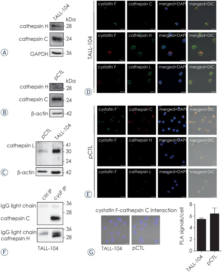 Expression of cathepsins C, H and L in TALL-104 cells and human CD8+ T cells and their co-localisation with cystatin F. (A-C) TALL-104 and pCTLs were analysed for cathepsins C, H and L expression by western blot. GAPDH or β-actin staining was used to show protein loading. (D, E) Co-localisation of cystatin F with cathepsins C, H and L was studied by immunofluorescence microscopy in TALL-104 (D) and pCTLs (E) . Cystatin F (green) and cathepsin C (red) co-localisation is shown in first row, cystatin F (red) and <t>cathepsin</t> H (green) in second row and cystatin F (red) and cathepsin L (green) in third row. Bars represent 10 μm. (F) TALL-104 cell lysates were immunoprecipitated with cystatin F antibody and analysed by western blot with anti-cathepsin C and H antibodies. (G) Proximity ligation experiment for cystatin F-cathepsin C interaction in TALL-104 cells and pCTLs. Signals were quantified in BlobFinder software. Bars represent 10 μm. ctrl = control; cysF = cystatin F; IP = immunoprecipitation; pCTL = primary human cytotoxic T cells