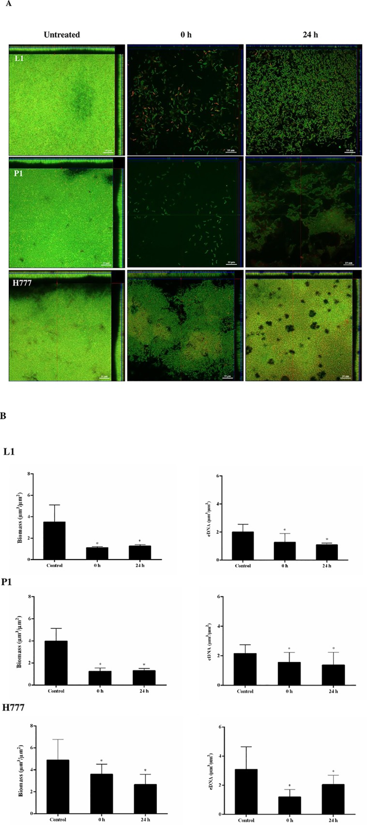 DNase I treatment affects initial attachment and biofilm formation of B . pseudomallei . B . pseudomallei L1, P1 and H777 biofilms were grown in LB at 37°C. The biofilms were treated with DNase I (0.01 U/mL) at 0 h and 24 h post-seeding and maintained until 48 h. (A) CLSM images of DNase I treated biofilm structure and eDNA on coverslips. The 2-day biofilm architecture and quantity of eDNA were examined after staining with FITC-ConA (green) and TOTO-3 (red), respectively. The scale bars indicate 10 μm. The images were taken using a Zeiss 800 CLSM microscope (63× magnification). (B) COMSTAT image analysis of DNase I-treated B . pseudomallei biofilms and eDNA. Data represents mean ± SD of 18 images from three independent experiments. * p