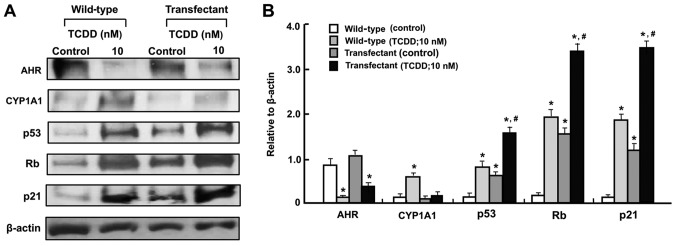 The TCDD-induced increase in CYP1A1 levels are suppressed in the regucalcin-overexpressing RKO human colorectal cancer cells in vitro . The wild-type RKO cells or regucalcin-overexpressing transfectants (1×10 6 cells/dish) were cultured in Dulbecco's modified Eagle's medium containing 10% fetal bovine serum, 1% penicillin/streptomycin and 1% fungizone in the presence or absence of vehicle (1% dimethyl sulfoxide) or TCDD (10 nM) for 3 days and then cell lysates were centrifuged. Subsequently, 40 µ g of the supernatant protein per lane were separated by SDS-PAGE and transferred to nylon membranes for western blotting using specific antibodies against the indicated proteins. Representative data from three independent experiments using different cell preparations are presented, and data are presented as mean ± standard deviation. (A) Representative film images of the TCDD effect. (B) Presented relative to β-actin of the TCDD effect. * P