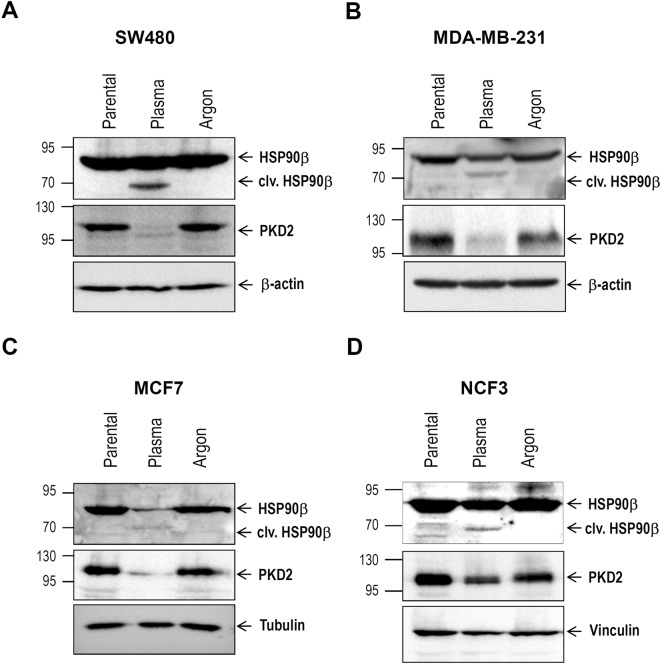 Cold plasma treatment is associated with cleavage of HSP90 chaperone and <t>PKD2</t> degradation. ( A – D ) Various cancer cell lines were subjected to treatment with plasma jet (60 s). Twenty-four hours later, cleared lysates were used for western blot analysis in order to determine the HSP90 and PKD2 abundance.