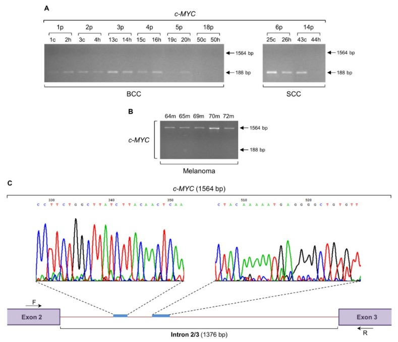 The c-MYC gene is subjected to an intron retention mechanism in human melanoma. Gene expression profiles of c-MYC , via employment of RT-sqPCR protocols, using total RNA preparations derived from BCC and SCC ( A ) or melanoma ( B ) biopsy specimens. GAPDH served as gene of reference (also, see Figure 6 F and Table S1 ). ( C ) Representative DNA chromatogram derived from cycle sequencing of the melanoma-specific 1564 bp long PCR product. Characteristic c-MYC intron 2/3 (1376 bp) sequenced areas are indicated. Besides intron 2/3 retention (1564 bp), note the absence of c-MYC normal transcriptional activity (lack of 188 bp) in all melanoma cDNA preparations ( B ). p: patient, c: cancer tissue (biopsy), h: healthy tissue (biopsy), m: melanoma (biopsy), bp: base pair, F: forward (primer) and R: reverse (primer).
