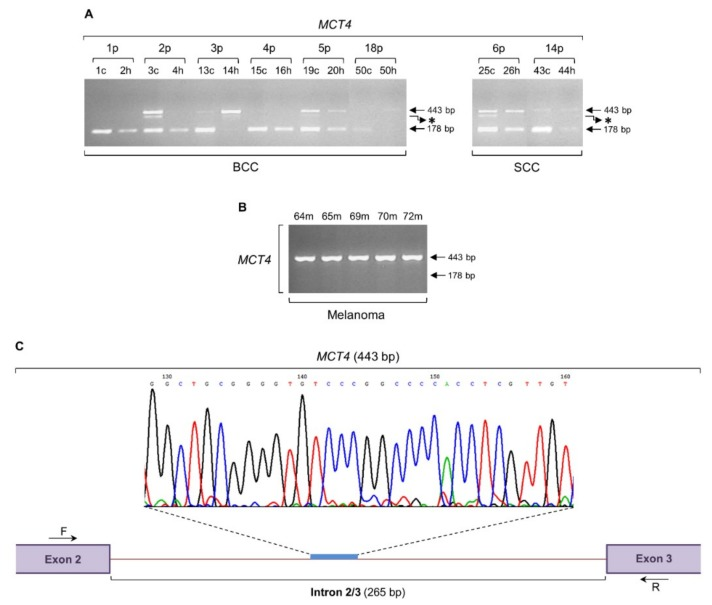 MCT4 intron retention is activated both in non-melanoma (BCC and SCC) and melanoma biopsy collections. Patterns of MCT4 transcriptional activity, through engagement of RT-sqPCR platforms based on total RNA extraction from BCC and SCC ( A ), or melanoma ( B ) biopsy samples. GAPDH was used as control gene (also, see Figure 6 F and Table S1 ). ( C ) Representative DNA sequence chromatogram of the melanoma-specific 443 bp long PCR fragment. A characteristic MCT4 intron 2/3 (265 bp) sequenced area is indicated. Besides the retention of MCT4 intron 2/3 (443 bp), note the absence of gene's normal transcriptional activity (lack of 178 bp) in all melanoma cDNA samples (B). p: patient, c: cancer tissue (biopsy), h: healthy tissue (biopsy), m: melanoma (biopsy), bp: base pair, F: forward (primer), R: reverse (primer) and asterisk (*): aberrant splicing-derived PCR band.