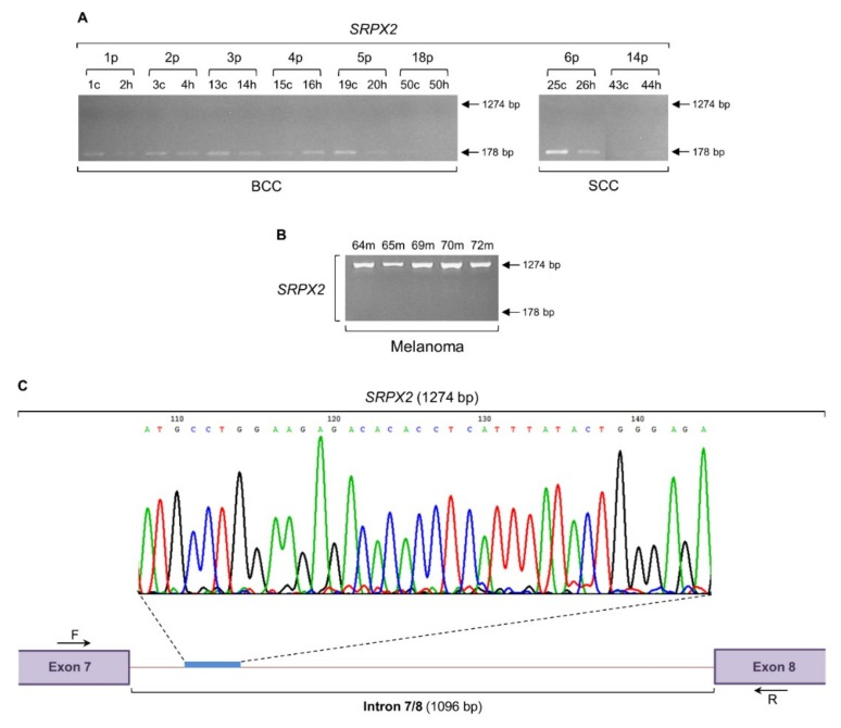 SRPX2 gene is subjected to a strong intron retention mechanism in melanoma, but not in non-melanoma cells. Gene expression patterns of SRPX2 , through engagement of RT-sqPCR protocols and utilization of total RNA extracts prepared from BCC and SCC ( A ) or melanoma ( B ) cDNA collections. GAPDH served as control gene (also, see Figure 6 F and Table S1 ). ( C ) Representative DNA sequence chromatogram derived from the melanoma-specific 1274 bp long PCR product. A characteristic SRPX2 intron 7/8 (1096 bp) sequenced area is indicated. Besides intron 7/8 retention (1274 bp), note the absence of SRPX2 normal transcriptional activity (lack of 178 bp) in all melanoma biopsy samples ( B ). p: patient, c: cancer tissue (biopsy), h: healthy tissue (biopsy), m: melanoma (biopsy), bp: base pair, F: forward (primer) and R: reverse (primer).