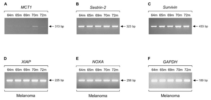 Lack of regular transcriptional activity is not a common mechanism in human melanoma. Expression profiles of a number of genes critically implicated in cell metabolism ( A , B , F ), cell signaling ( B ) and cell survival or death ( C – E ), via engagement of RT-sqPCR platforms based on total RNA extraction from melanoma biopsy specimens. ( A ) MCT1 gene. (B) Sestrin-2 gene. (C) Survivin gene. ( D ) XIAP gene. ( E ) NOXA gene. ( F ) GAPDH gene. Note the readily detectable ( MCT1 ), or strongly activated ( Sestrin-2 , Survivin , XIAP , NOXA , and GAPDH ) transcriptional expression of the herein examined genes. GAPDH was used as -housekeeping- gene of reference (also, see Figure 1 , Figure 2 and Figure 3 and Figure 5 , Table S1 , and Figures S1 and S2 ). m: melanoma (biopsy) and bp: base pair.