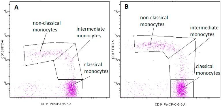 Exemplary plots of flow cytometry analysis showing the staining with antibodies specific for CD14 and CD16 in monocyte fraction: ( A ) peripheral blood ( B ) FNAB. Gating of individual monocyte subpopulations is presented: classic monocytes (CD14 high CD16 − ), intermediate monocytes (CD14 high CD16 + ), non-classical monocytes (CD14 low CD16 + ).