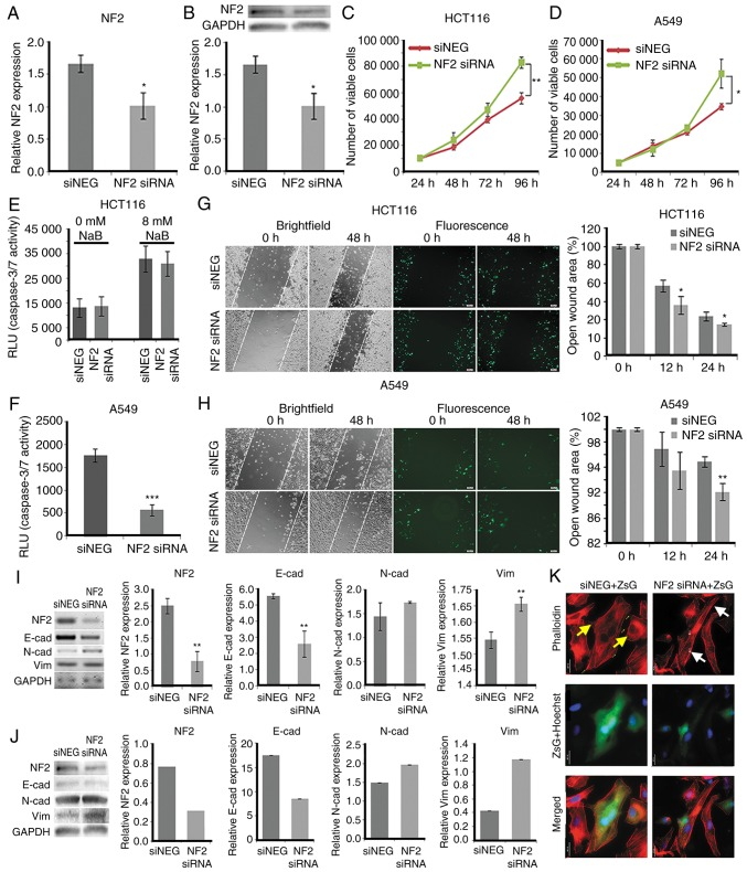 siRNA-mediated NF2 silencing phenocopies pro-oncogenic effects of miR-92a-3p overexpression. (A) Reverse transcription-quantitative polymerase chain reaction (RT-qPCR) and (B) western blotting detection of NF2 /Merlin expression in HCT116 cells transfected with negative control siRNA (siNEG) or NF2 siRNA. Proliferation of (C) HCT116 and (D) A549 cells transfected with siNEG or NF2 siRNA. Caspase-3/7 activity of (E) HCT116 and (F) A549 cells transfected with siNEG or NF2 siRNA. Representative micrographs of (G) HCT116 and (H) A549 wound fields after scratching (0 h) the monolayer and at 24 h post-scratch. Scale bars, 100 µm. (I) Semi-RT-qPCR and (J) western blotting detection of NF2 /Merlin and EMT marker expression levels in HCT116 cells transfected with siNEG or NF2 siRNA. Data are expressed as the mean ± standard deviation (SD). *P≤0.05, **P≤0.01, ***P≤0.001. (K) Fluorescent images showing the F-actin cytoskeletal organization of A549 cells co-transfected with pmR-ZsGreen1 and siNEG or NF2 siRNA. Yellow arrows indicate cells with sparse transverse actin filaments with a high number of intercellular adhesions. White arrows indicate cells with dense and prominent transverse F-actin fibers and formation of multiple pseudopodia, characteristic of motile cells (phalloidin: F-actin; Hoechst: nuclei, ZsGreen1: cells positively transfected with pmR-ZsGreen1). Scale bar, 25 µm. NF2 , neurofibromin 2; EMT, epithelial-mesenchymal transition.