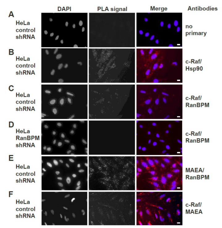 Endogenous RanBPM and c-Raf interaction in HeLa cells using PLA. Duolink II proximity ligation assay (PLA) was performed in: ( A ) control shRNA HeLa cells, without the addition of primary antibodies (negative control); ( B ) control shRNA HeLa cells, with Hsp90 and c-Raf primary antibodies (positive control); ( C ) control shRNA HeLa cells, using c-Raf and RanBPM primary antibodies; ( D ). HeLa RanBPM shRNA cells, with c-Raf and RanBPM primary antibodies (negative control); ( E ) control shRNA HeLa cells, using MAEA (Macrophage erythroblast attacher) and RanBPM primary antibodies (positive control). ( F ) Control shRNA HeLa cells, using c-Raf and MAEA primary antibodies. The DAPI filter was used to visualize the nuclei, while the Cyanine 3 (Cy3) filter was used to visualize the PLA dots representing protein–protein interactions. Representative images from one of three independent experiments are shown. Scale bars, 10 μm.