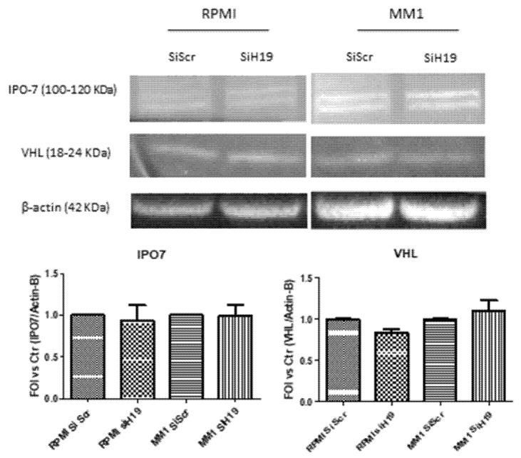 Western blot analysis of IPO7 and VHL on total extract of MM hypoxic cells silenced, or not, for lncH19. Densitometric analysis with Image J software was done with respect to total protein level of β-actin, used as loading control. Values are presented as mean ± SD.