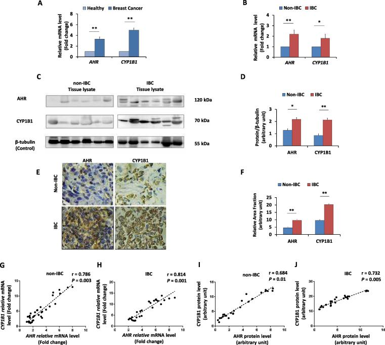 mRNA and protein expression levels of AHR and CYP1B1 in non-IBC and IBC carcinoma tissues. Bars represent the fold change (RQ = 2 −ΔΔCt ) of mRNA expression of AHR and CYP1B1 in (A) breast cancer tissues (n = 61) after normalization to values of healthy tissues (n = 14), and in (B) IBC carcinoma tissues (n = 28) after normalization to values of non-IBC carcinoma tissues (n = 33). Data represent mean ± SD, * P ≤ 0.05 and ** P ≤ 0.001 as determined by Student's t -test. (C) Representative of immunoblots membranes showing the protein expression of AHR and CYP1B1 in non-IBC and IBC, tissue lysates of non-IBC and IBC were analyzed by SDS-PAGE, transferred into PVDF membranes and immunoblotted with antibodies specific for AHR and CYP1B1. (D) Bars represent the relative density values of detected protein bands assessed by ImageJ software and normalized against the loading control β-tubulin, showing significantly higher expression of AHR and CYP1B1 in IBC (n = 28) than in non-IBC (n = 33) carcinoma tissues. (E) Representative fields of immunostaining (brown colour stain) of AHR and CYP1B1 in paraffin embedded breast carcinoma tissue sections showing high density of cancer cells positive for AHR and CYP1B1 in IBC (n = 20) compared to non-IBC patients (n = 25) (magnification 40X). (F) Bars represent the relative area fraction to healthy breast tissues calculated by using ImageJ software. Data represent the mean ± SD, * P ≤ 0.05 and ** P ≤ 0.001 as determined by Student's t -test. (G and H) Represent scatter charts showing the positive correlations between the mRNA expression of AHR and CYP1B1 in non-IBC and IBC carcinoma tissues. (I and J) Represent scatter charts showing the positive correlations between the protein expression of AHR and CYP1B1 in non-IBC tissues and IBC tissues. Correlation coefficients (r values) were calculated by Pearson's correlation test.