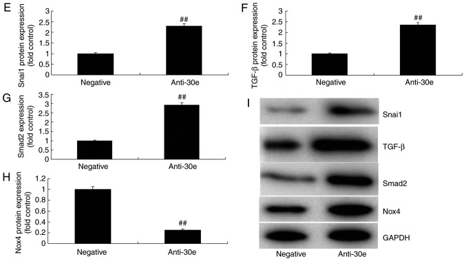 miRNA-30e regulates TGF-β-mediated NADPH oxidase 4-dependent oxidative stress by Snai1. (A) Heat map for signaling pathway, (B) Snai1 was a putative target of miRNA-30e and (C) luciferase reporter activity, (D) Snai1 protein expression. (E) Snai1, (F) TGF-β, (G) Smad2 and (H) Nox4 protein expression by statistical analysis, and (I) western blotting analysis. ## P