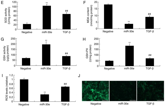 Activation of TGF-β reduces the effects of miRNA-30e on the oxidative stress in vitro model. (A) TGF-β, (B) Smad2 and (C) Nox4 protein expression by statistical analysis and (D) western blotting analysis, (E) MDA, (F) SOD, (G) GSH and (H) GSH-PX (I) ROS levels and (J) green fluorescent protein. ** P
