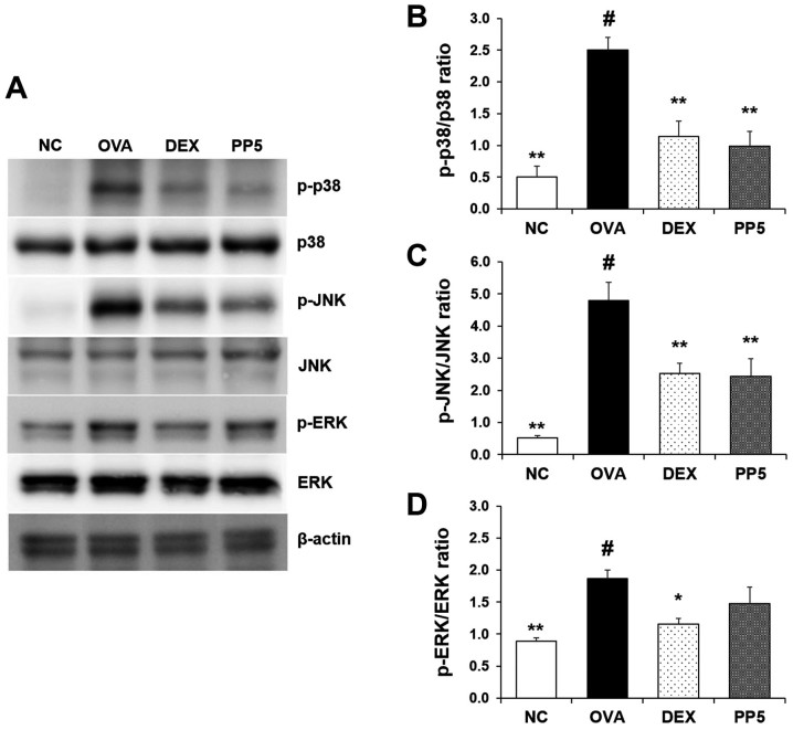 PP downregulates the activation of p38 mitogen-activated protein kinases in the lungs of mice with OVA-induced airway inflammation. (A) Levels of p38, ERK and JNK activation were determined by western blot analysis. Quantitative analysis of (B) p-p38, (C) p-JNK and (D) p-ERK was performed by densitometric analysis. # P