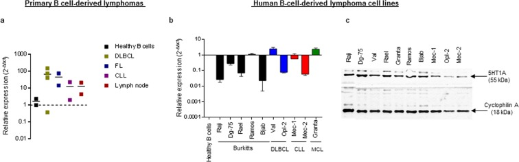 Primary B cell-derived lymphomas and lymphoma-derived cell lines express 5HT1A. ( a ) rtqPCR analysis of 5HT1A expression in lymph node or spleen biopsies samples from different types of primary NHLs. The results are presented as a fold change relative to B cells from healthy donors, expression levels were normalized to of Beta-actin and calculated by 2(−ΔΔct) method. ( b ) rtqPCR analysis of 5HT1A expression in different types of B cell-derived lymphoma cell lines. The results are presented as a fold change relative to B cells from healthy donors, expression levels were normalized to 18 s rRNA and calculated by 2(−ΔΔct) method. Data is presented as the mean of 2 independent experiments ± SD. ( c ) Western blot analysis of 5HT1A protein expression in B cell-derived lymphoma cell lines (n = 3). The gel and blot image shown in the figure was cropped from same part of the gel with an exposure time of 30 s where Cyclophilin-A was used as a loading control. Full-length blots and gels are presented in Supplementary Figure 3.