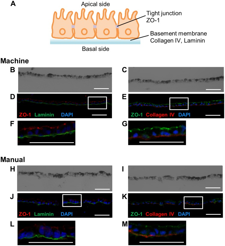Phase-contrast and fluorescence images of immunostaining. hiPS-RPE cell sheets were cultured for 49 days using both machine and manual culture methods. (A) Schematic figure showing a cross-section of the RPE cell sheet. (B–G) Phase-contrast (B, C) and fluorescence (D–G) images of machine-cultured hiPS-RPE cell sheets. (B, D, F) Immunostaining for tight junction (ZO-1, red) and basement membrane (laminin, green) proteins. (C, E, G) Immunostaining for tight junction (ZO-1, green) and basement membrane (type IV collagen, red) proteins. (H–M) Phase-contrast (H, I) and fluorescence (J–M) images of manually cultured hiPS-RPE cell sheets. (H, J, L) Immunostaining for tight junction (ZO-1, red) and basement membrane (laminin, green) proteins. (I, K, M) Immunostaining for tight junction (ZO-1, green) and basement membrane (type IV collagen, red) proteins. Scale bars: 50 μm.