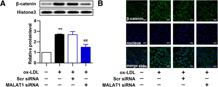 Knockdown of <t>MALAT1</t> inhibits ox-LDL-induced β-catenin translocation. HUVECs were transfected with <t>MALAT1-siRNA</t> or scramble control (scr) for 24 h. a The protein expression of β-catenin in nucleus (n = 3, * P