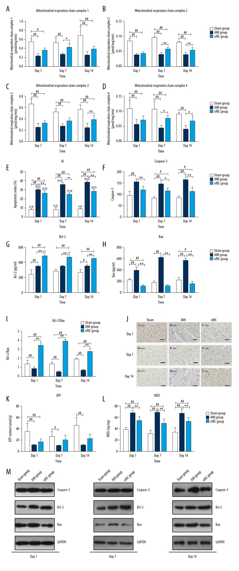 The effects of remote ischemic conditioning (RIC) on cardiac hemodynamic function and mitochondrial respiratory function in the rat model of acute myocardial infarction (AMI). ( A–D ) The myocardial concentrations of mitochondrial respiratory chain complexes 1, 2, 3, and 4. ( E ) The apoptosis index of the ischemia area for the three groups, the sham group, the AMI group, and the RIC group. ( F ) The serum concentrations of caspase-3 in each of the three rat groups. ( G–I ) The expression of Bcl-2 and Bax protein, and the ratio of Bcl-2/Bax in each group. ( J ) Myocardial cell apoptosis determined by TUNEL staining in rats after AMI. Scale bar=200 μm. (K–L) The levels of ATP and inducible nitric oxide synthase (iNOS) in each group. ( M ) Western blot assay for the protein levels of caspase-3, Bcl-2, and Bax in each group. * P