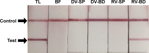 Detection of viral protein 6 (VP6) in rotavirus absorbed onto the antibody-integrated MNBs. Notes: Rotavirus-infected cell lysate (10 µL) was diluted with PBS (500 µL) and incubated with antibody-integrated MNBs prior to magnetic separation. The presence of VP6 was interpreted on the basis of the presence and absence of a test line (Test). A positive control line was also included (Control). Samples were divided into the following categories: diluted rotavirus sample before incubation with the beads (BF), bead fraction after incubation with anti-rotavirus antibody-integrated MNBs (RV-BD), bead fraction after incubation with anti-dengue virus antibody-integrated MNBs (DV-BD), supernatant fraction after incubation with the anti-rotavirus antibody-integrated MNBs (RV-SP), supernatant fraction after incubation with the anti-dengue virus antibody-integrated MNBs (DV-SP), and total sample containing the same quantity of rotavirus as in 10 µL of rotavirus-infected cell lysate (total fraction, TL). All fractions were solubilized with lysis buffer and subjected to immunochromatography (Immuno Card STAT! ® Rotavirus, Meridian Bioscience Inc., Cincinnati, OH, USA) for the detection of rotavirus VP6. Abbreviation: MNBs, magnetic nanobeads.