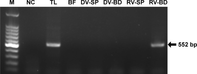Detection of viral RNA of rotavirus adsorbed onto antibody-integrated MNBs. Notes: Rotavirus-infected cell lysate (10 µL) was diluted with PBS (500 µL) and then incubated with antibody-integrated magnetic beads. After incubation, the following fractions were obtained: 1) diluted rotavirus sample before incubation with the beads (BF), 2) bead fraction after incubation with anti-rotavirus antibody-integrated MNBs (RV-BD), 3) bead fraction after incubation with anti-dengue virus antibody-integrated MNBs (DV-BD), 4) supernatant fraction after incubation with the anti-rotavirus antibody-integrated MNBs (RV-SP), 5) supernatant fraction after incubation with the anti-dengue virus antibody-integrated MNBs (DV-SP), and 6) total sample containing the same quantity of rotavirus as in 10 µL of rotavirus-infected cell lysate (total fraction, TL). Viral genomic RNA was subsequently extracted from the above fractions using a QIAamp Viral RNA mini kit and subjected to a RT-reaction. Rotavirus viral protein 7 (VP7) gene (552 bp) in the cDNA was amplified by PCR as described in Materials and methods. PCR products were analyzed by agarose gel electrophoresis (1.2% gel). The identity of the amplified products was confirmed by DNA sequencing. The left-hand lane is size marker (M), which includes DNA of 100, 200, 300, 400, 500, 600, 700, 800, 900, 1,000, 1,200, and 1,500 bp. The position of the 552 bp band for VP7 is indicated by an arrow. The NC comprised a water sample (no rotavirus) that was subjected to RT-PCR. Abbreviations: MNBs, magnetic nanobeads; NC, negative control; RT, reverse transcription.