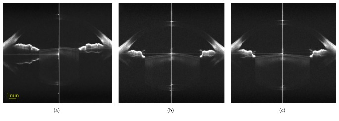 Corrected OCT images at the relax (left) and accommodative states (5.0 D, right) in a 26-year-old female with −1.25 D myopia with (a) artificial tears, (b) phenylephrine, and (c) <t>tropicamide.</t> These three images were corrected only at both corneal surfaces.