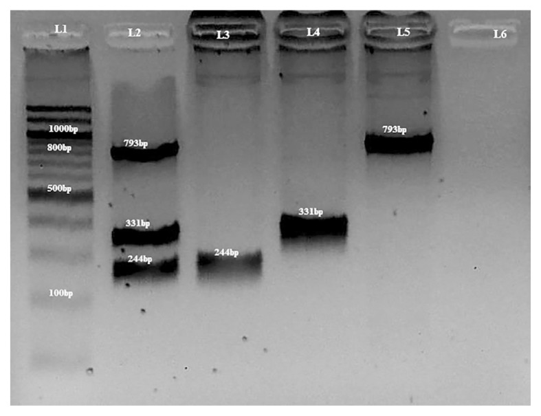 A 2% agarose gel showing PCR products from multiplex and uniplex PCR for CYP3A4*4 , CYP3A4*18B and CYP3A4*22 . L1: Quick-Load 100bp DNA ladder (NEB® inc, Massachusetts, USA). L2: multiplex pcr with band sizes of 244 bp, 331 bp and 793 bp. L3, L4 and L5 contain positive controls for CYP3A4*4 with 244 bp, CYP3A4*18B with 331 bp and CYP3A4*22 with 793 bp respectively. L6 is a negative control