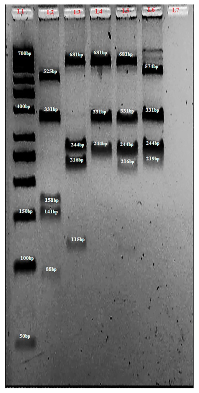 A 4% agarose gel of multiplex PCR-RFLP analysis of CYP3A4*4 , CYP3A4*18B and CYP3A4*22 . L1 contained GeneRuler 50bp DNA ladder (Thermo Fisher Scientific Inc, Massachusetts, USA). L2 contained wild type CYP3A4*4 allele (88 bp, and 141 bp) together with 331 bp for CYP3A4*18B and 153 bp and 525 bp from CYP3A4*22 digestions. L3, L4 and L5 contain wild type (216 bp and 115 bp), homozygous (undigested 331 bp) and heterozygous (115 bp, 216 bp and 331 bp) variants, respectively for CYP3A4*18B . They also contain 112 bp (except for L4 in which it is not shown) and 681 bp from CYP3A4*22 as well as 244 bp for CYP3A4*4 . L6 contained wild type CYP3A4*22 (219 bp and 574 bp) as well as 244 bp and 331 bp for CYP3A4*4 and CYP3A4*18B, respectively. L6 contained negative control