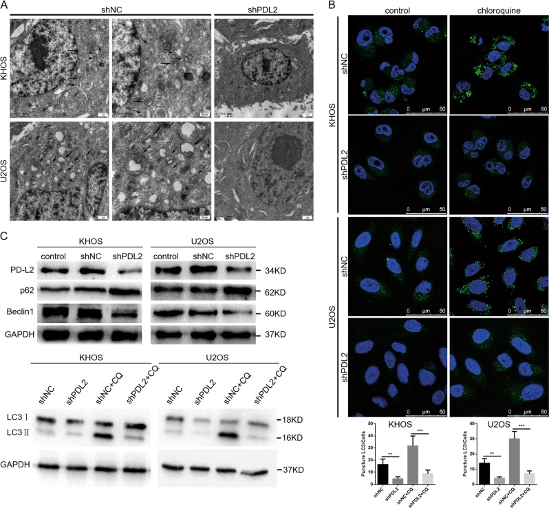 PD-L2 knockdown-induced inhibition of autophagy attenuates migration and invasion of osteosarcoma cells. a Representative TEM images depict ultrastructures present during autophagy in KHOS and U2OS cells transfected with PD-L2 <t>shRNA</t> or shNC. Images show autophagic vacuoles (arrows) observed in control cells (the picture in the right is a zoom of the picture in the left). No or few autophagic vacuoles were observed in PD-L2 knockdown cells. b Cells after PD-L2 knockdown exhibited a punctate pattern of LC3-II fluorescence, with reduced LC3-II compared with autophagosomes. KHOS and U2OS cells were incubated with or without CQ. c Expression of LC3, p62, and beclin-1 was evaluated by western blot. KHOS and U2OS cells were incubated in the presence or absence of CQ