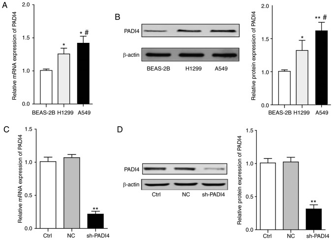 The expression levels of PADI4 in vitro and knockdown of PADI4 in A549 cells. (A) The statistical analysis represents the mRNA expression level of PADI4 in different lung cancer cells and normal lung epithelial cells. (B) The representative bands of western blotting and the statistical analysis. Differences among groups were analyzed by one-way ANOVA, followed by Bonferroni's multiple comparison test. *P