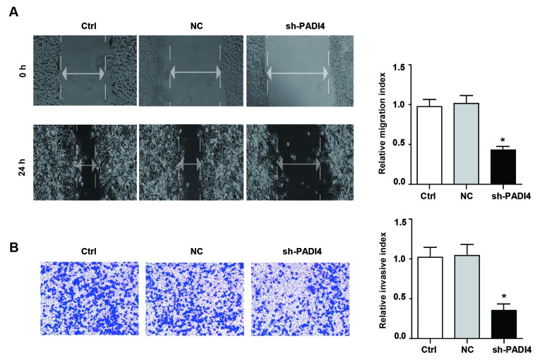 Knockdown of PADI4 inhibits the migration and invasion ability of A549 cell. (A) The migration potential of A549 cells and shPADI4 A549 cells determined by wound-healing assay (magnification, ×200) and the statistical results are presented. (B) The invasion potential of A549 cells and shPADI4 A549 cells assessed by Transwell assay (magnification, ×400) and the statistical chart. Differences among groups were analyzed by one-way analysis of variance, followed by Bonferroni's multiple comparison test. *P