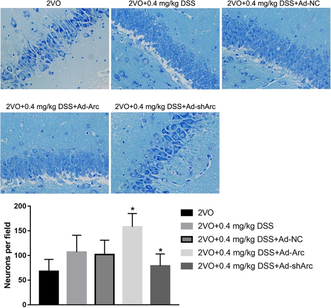 The effect of Arc overexpression or knockdown on hippocampal neuronal densities in 2VO rats treated with 0.4 mg/kg DSS. The top part of the figure shows the Nissl staining of the DG per animal group. The bottom part shows the neuronal density quantifications in the <t>CA1</t> region per group. Bars represent mean ± SD for sample replications ( n = 10). ∗ p