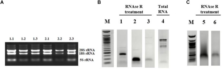 Validation of candidate circRNA by cloning. HeLa cells were treated with cisplatin in three biological replicates as explained in Materials and Methods. Total RNAs from each replicate of control DMSO (1.1–1.3) and cisplatin (2.1–2.3) were run on 1% agarose gel for visual analyses (A) . Total RNAs were treated with RNAse R to eliminate linear RNAs followed by reverse transcription and PCR amplification. Lanes 1, 2, 5, and 6 (B,C) are the PCR products from hsa_circ_0012992, hsa_circ_HIPK3, hsa_circ_0014824, and hsa_circ_0029693, respectively. The efficiency of RNAse R treatment was measured by PCR-amplifying the linear beta-actin mRNA before (Lane 4) and after (Lane 3) the RNAse treatment. The gel-purified PCR fragments were cloned into the pCR ® II TA vector (Thermo Fisher Scientific, Unite States) and sequenced to identify the backsplice junction.
