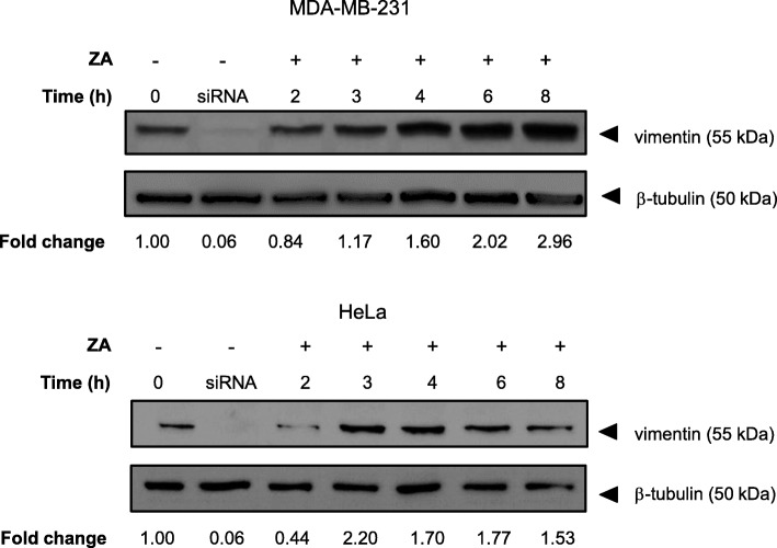 Ajoene Induces Increased Expression of Vimentin. MDA-MB-231 (top) or HeLa (bottom) cells were treated with either DMSO (control) or 10 μM ZA in DMSO up to 8 h. Proteins collected from the cell lysate were separated by SDS-PAGE and vimentin expression was quantified by immunoblot probed with a primary anti-vimentin antibody (V9). The blots shown are a representative experiment of two independent determinations