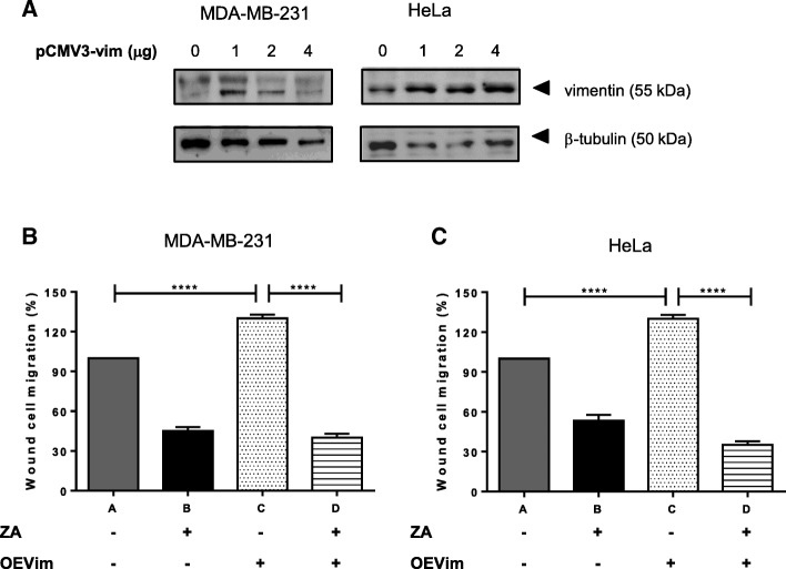 Ajoene Rescues the Enhanced Migratory Potential of Vimentin Overexpressing Cells. ( a ) Vimentin was transiently overexpressed using human vimentin cDNA cloned into pCMV3, in both HeLa and MDA-MB-231 cells as shown and quantified by immunoblot. A scratch wound was then introduced into MDA-MB-231 ( b and d ) or HeLa ( c or e ) cells and 10 μM ZA in DMSO or DMSO alone was incubated with the cells for 24 h. Migration into the wound was then quantified using Image J software. The results of a single representative experiment is shown; however experiments were performed in duplicate