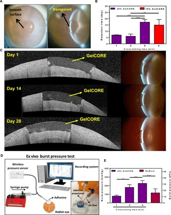 Ex vivo application and adhesion properties of GelCORE adhesives. ( A ) Representative slit lamp photographs from rabbit eyes sealed by GelCORE bioadhesive, and ( B ) retention times of GelCORE bioadhesives, formed at various cross-linking times and prepolymer concentrations, on cornea tissues. ( C ) Representative optical coherence tomography images after ex vivo application of GelCORE adhesives to rabbit corneas at days 1, 14, and 28 after application. ( D ) Schematic of ex vivo burst pressure set up, including a syringe pump, a pressure sensor, and a recording system. ( E ) Average burst pressure of GelCORE adhesives formed by varying photocrosslinking time, compared to a commercially available ocular sealant, ReSure (control). Data are represented as means ± SD (** P