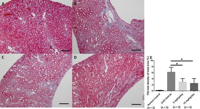 Histologic Masson's trichrome stain findings of renal fibrosis after UUO and administration of a p38 MAPK inhibitor. Scale bar = 100 μm (original magnification x100). Mice from the sham-operated control group (A) show sparse tubulointerstitial fibrosis. UUO-operated group with administered 20% DMSO vehicle (B) shows prominent tubulointerstitial fibrosis. UUO-operated group administered p38 MAPK inhibitor at 5 mg/kg/day (C). UUO-operated group administered p38 MAPK inhibitor at 10 mg/kg/day (D). The extent of tubulointerstitial fibrosis in the groups administered p38 MAPK inhibitor was lower than that in the vehicle group (E). *, P