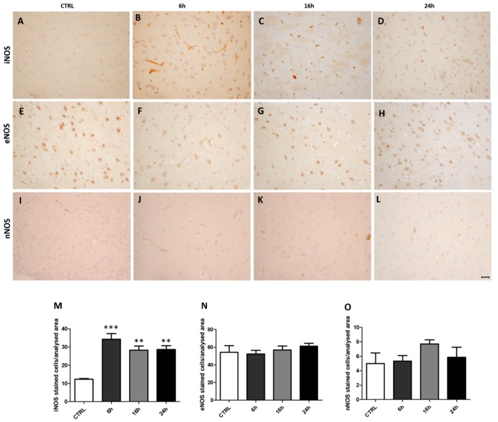 Inducible nitric oxide synthase (iNOS) immunoreactivity is increased following MDMA administration. ( A – D ) Representative images (light microscopy, 40×) of iNOS immunoreactivity in the frontal cortex of rats receiving ( A ) saline (CTRL) and of rats receiving MDMA and sacrificed after ( B ) 6 h, ( C ) 16 h, and ( D ) 24 h from its administration. ( E – H ) Representative images (light microscopy, 40×) of endothelial nitric oxide synthase (eNOS) immunoreactivity in the frontal cortex of rats receiving ( E ) saline (CTRL) and of rats receiving MDMA and sacrificed after ( F ) 6 h, ( G ) 16 h, and ( H ) 24 h from its administration. ( I – L ) Representative images (light microscopy, 40×) of neuronal nitric oxide synthase (nNOS) immunoreactivity in the frontal cortex of rats receiving ( I ) saline (CTRL) and of rats receiving MDMA and sacrificed after ( J ) 6 h, ( K ) 16 h, and ( L ) 24 h from its administration. Scale bar for images in panels ( A – L ) = 50 μm. ( M – O ) Quantification of ( M ) iNOS, ( N ) eNOS, and ( O ) nNOS positive-stained cells/area analyzed in controls (CTRL) and MDMA-exposed rats, sacrificed after 6 h, 16 h, and 24 h from its administration. One-way ANOVA followed by Tukey's post-hoc test. For iNOS: F = 9.090, *** p