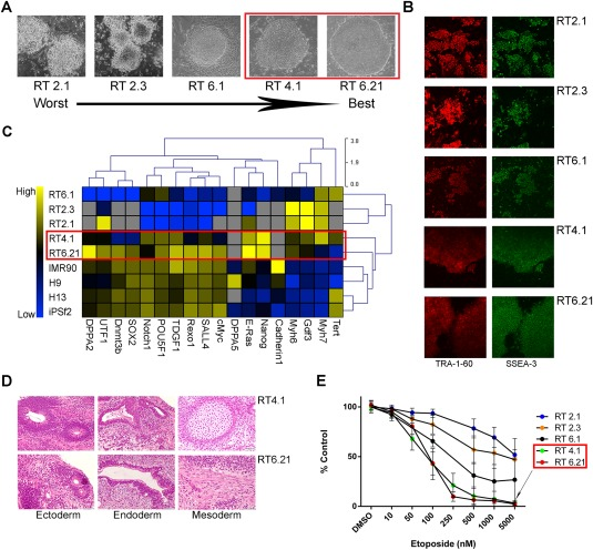 Human induced pluripotent stem cell (hiPSC) clones exhibiting the highest degree of etoposide sensitivity also demonstrated good hiPSC clonal morphology and pluripotent gene expression patterns consistent with pluripotent control cell lines. (A): ×40 images of hiPSC clones. Red outline highlights clones (RT4.1, RT6.21) displaying the best morphology (clean, distinct borders). (B): Immunofluorescence detection (×40) of SSEA‐3 and TRA‐1–60 expression in hiPSCs. (C): qPCR of RNA isolated from five of our hiPSC lines (RT), two control hiPSC lines (IMR90, iPSf2) and two control ESC lines (H9, H13). Red outline highlights the two clones (RT4.1, RT6.21) exhibiting pluripotent gene expression patterns most similar to those displayed by control pluripotent cells. (D): RT4.1 and RT6.21 clones successfully formed teratomas in athymic nude mice. Scan bars = 50 µM. (E): Annexin V/PI staining of hiPSC cells treated w/wo etoposide for 24 hours and plotted as a percent of DMSO control. Red outline highlights two hiPSC lines (RT4.1, 6.21) that demonstrated the greatest sensitivity to etoposide. Data used to calculate the individual means was generated from a minimum of five biological replications. Error bars represent the SD calculated around an individual mean. Abbreviation: DMSO, dimethyl sulfoxide.