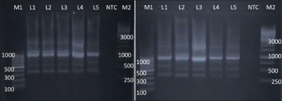 Random amplified polymorphic DNA - polymerase chain reaction profiles of Salmonella enterica isolates with primer 1290. Plate 1 Lane M1: 100 bp ladder; Lane 1: Salmonella Lindenburg; Lane 2: Salmonella Lindenburg; Lane 3: Salmonella Lindenburg; Lane 4: Salmonella Rough; Lane 5: Salmonella Rough; Lane 6: NTC; Lane M2: 1kb ladder and Plate 2-5: Salmonella Typhimurium; Lane 6: NTC: Lane M2: 1 kb ladder.