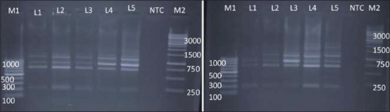 Random amplified polymorphic DNA - polymerase chain reaction profiles of Salmonella enterica isolates with primer 3. Plate 1 - Lane M1: 100 bp ladder; Lane 1: Salmonella Lindenburg; Lane 2: Salmonella Lindenburg; Lane 3: Salmonella Lindenburg; Lane 4: Salmonella Rough; Lane 5: Salmonella Rough; Lane 6: NTC; Lane M2: 1 kb ladder and Plate 2 – Lane M1: 100 bp ladder; Lane 1: Salmonella Enteritidis; Lane 2: Salmonella Lindenburg; Lane 3: Salmonella Rough; Lane 4: Salmonella Rough; Lane 5: Salmonella Typhimurium; Lane 6: NTC; Lane M2:1 kb ladder.