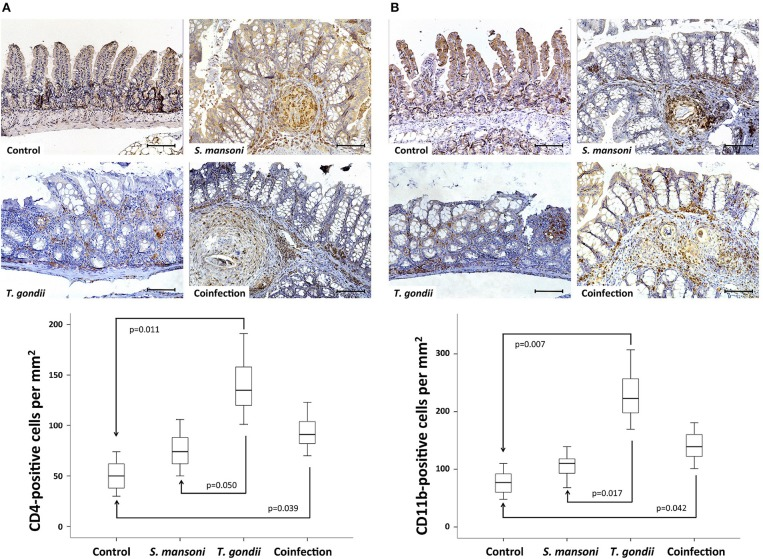 T. gondii -induced ileitis is characterized by an intense inflammatory cell infiltration in the lamina propria, including CD4- and CD11b-positive cells. Prior S. mansoni infection attenuates T. gondii -induced accumulation of CD4- (A) and CD11b-positive cells (B) . The horizontal bars represent the medians, the boxes represent the 25th and 75th percentiles, and the vertical lines below and above the boxes represent the minimum and maximum values, respectively. The analysis was performed by Kruskal-Wallis ANOVA on ranks test, in which multiple comparisons were carried out using the Dunnett's test. The scale bars represent 20 μm. The data are representative of three independent experiments, with 5–7 animals per group.