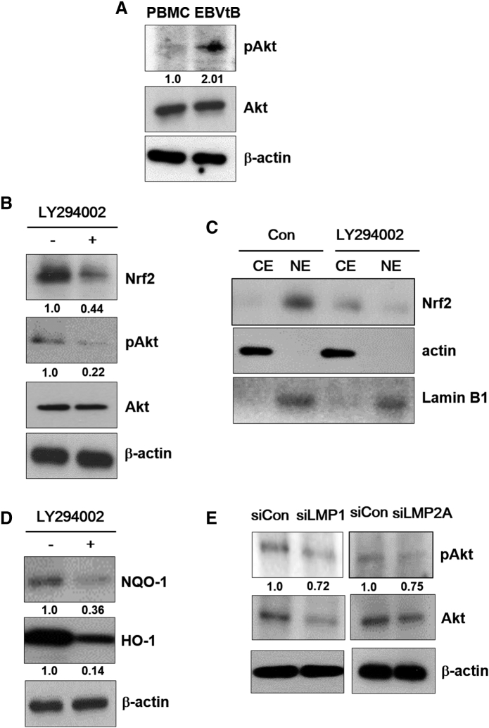 Akt activates Nrf2 in EBV-transformed B cells. (A) Cell extracts were prepared from PBMCs and EBV-transformed B cells. The protein levels of pAkt and Akt were measured by Western blot analysis. (B-D) EBV-transformed B cells were treated with LY294002 (10 μM) for 48 hours. (B and D) Whole cell extract and (C) cytosolic and nuclear extracts were prepared from LY294002-treated cells. The protein levels of Nrf2, pAkt, Akt, HO-1, and NQO-1 were measured by Western blot analysis. β-Actin and Lamin B1 were used as equal loading controls for normalization. CE , cytosol extract; NE , nuclear extract. (E) Cell extracts were prepared from siRNA-LMP1 or LMP2A-transfected EBV-transformed B cells. The protein levels of pAkt and Akt were measured by Western blot analysis. The fold increase in pAkt, Nrf2, NQO-1, and HO-1 is indicated numerically, as determined by densitometry.