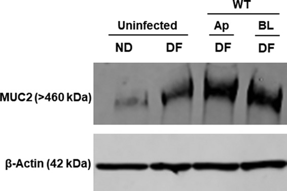 Effect of S. flexneri infection on mucus expression. Enteroid monolayers derived from the colon were infected either apically or basolaterally with 4 × 10 7 CFU of WT S. flexneri for 2 h. Following invasion, the enteroid monolayers were incubated in medium containing gentamicin for an additional 4 h to allow intracellular replication of bacteria and to remove extracellular bacteria. Undifferentiated (ND) and differentiated monolayers (both uninfected) were used as controls. Whole-cell lysates of uninfected or infected enteroids were probed for Muc2 by Western blotting. A Western blot with β-actin is shown to confirm equal loading of samples (bottom panel).