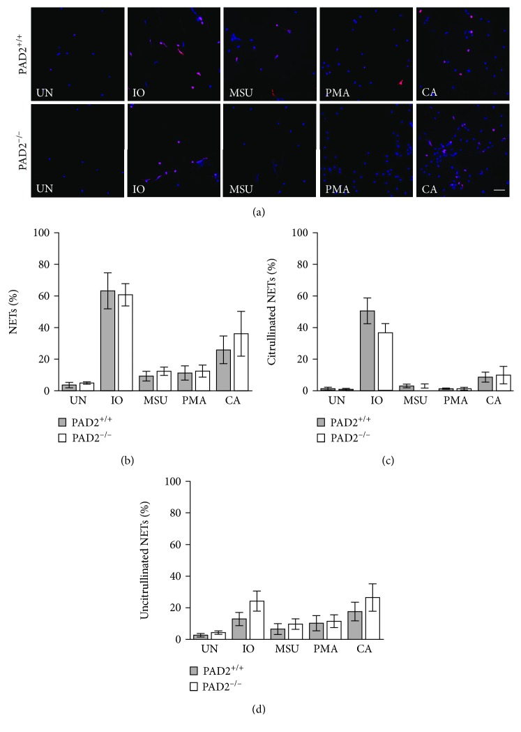 PAD2 is not required for the formation of NETs in murine neutrophils. Bone marrow neutrophils from PAD2 +/+ and PAD2 −/− mice were left untreated (UN) or were treated with ionomycin (IO), MSU, PMA, and C. albicans (CA), fixed, and stained with DAPI (blue) and anti-citrulline antibody (pink). (a) Representative images at 400x, scale bar = 50 μ M. The number of neutrophils and NETs were quantified. Graphs depict the average and SEM for percent of neutrophils that formed total NETs (b), citrullinated NETs (c), and uncitrullinated NETs (d) for each condition with percent NETs for each stimulant compared between PAD2 +/+ and PAD2 −/− mice. For all panels: n = 4; no comparisons were significant.