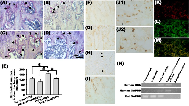 Engrafted human umbilical cord-derived mesenchymal stem cells (HUMSCs) differentiate into osteoblasts and inhibit the number of osteoclasts at the distal femur. TRAP staining was performed to detect osteoclasts (arrows) in the metaphysis of the distal femur in the normal + phosphate-buffered saline (PBS; A), normal + HUMSCs (B), ovariectomy (OVX) + PBS (C), and OVX + HUMSCs (D) groups. The number of osteoclasts per trabecular bone area (no./mm 2 ) was quantified. The results indicated no difference in the osteoclast number among the normal + PBS, normal + HUMSCs, and OVX + HUMSCs groups. However, the osteoclast number was significantly higher in the OVX + PBS group than in the other 3 groups (E). Histological sections were immunologically stained with <t>anti-osteocalcin</t> antibody to identify osteocalcin expression near the trabeculae in the metaphysis in each group. The results revealed considerably osteocalcin expression around trabeculae in the normal + HUMSCs group (G). Some osteocalcin expression was detected in the normal + PBS and OVX + HUMSCs groups (F and I). In the OVX + PBS group, only slight expression was detected (H, arrows). Histological sections obtained from the left distal femur were stained with antihuman nuclei antibody to label HUMSCs. Human nuclei were found within the bone marrow cavity (J2) and trabeculae (J1). Double immunofluorescence revealed that numerous HUMSCs (rhodamine, red in K) and abundant osterix (fluorescein, green in L) existed in the rat femur. The merged image showed that many HUMSCs did differentiate into osterix-expressing osteoblasts (M). The results of RT-PCR further demonstrated that the grafted HUMSCs expressed human osteocalcin at the messenger <t>RNA</t> level (N). * Versus normal + PBS group, P