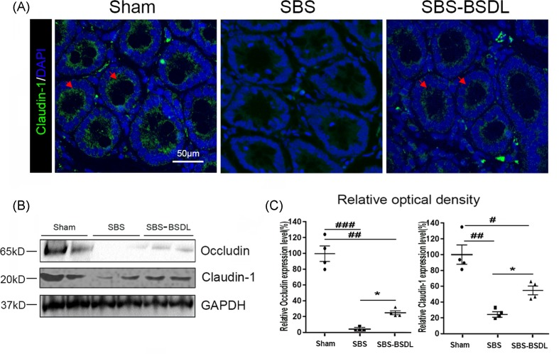 The expressions of TJ proteins in ileum ( A ) Representative claudin-1 immunofluorescence images in ileum of the sham group, the SBS group, and the SBS-BSDL group (crypt vertical section, magnification 200×). ( B ) Western blot representing total occludin and claudin-1 in ileum of the sham group, the SBS group, and the SBS-BSDL group. ( C ) Densitometric quantitation of relative expression levels normalized to GAPDH. Data are expressed as mean ± S.E.M.; rats n =4 per group. * P