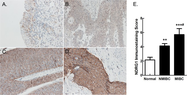 Pathological sections from bladder cancer patients were examined by immunochemistry. ( A ) Low expression of NDRG1 in tumour-free tissue; ( B ) Low expression of NDRG1 in NMIBC tissue; High expression of NDRG1 in ( C ) NMIBC and ( D ) MIBC tissue. NMIBC: non-muscle-invasive bladder cancer, MIBC: muscle-invasive bladder cancer. 200 × magnification. ( E ) The immunostaining score of NDRG1 protein expression in bladder cancer; LSD test, Normal group as the control, **p = 0.00738, ***p = 0.000049. NMIBC group as the control, # p = 0.0211.