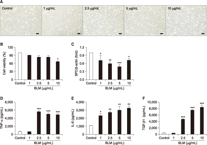 In the MLE-12 cells was evaluated toxicity effects of by bleomycin (BLM). MLE-12 cells were treated BLM (1–10 µg/mL) for 24 hours. (A) MLE-12 cells were induced morphological change by BLM. Scale bars=100 µm. (B) MLE-12 cells were treated with BLM and determined cell viability using MTT assay. (C) Expression of alveolar epithelial cell marker, surfactant protein C (SPC) was measured by quantitative real-time reverse transcription-polymerase chain reaction. The graph was measured inflammatory cytokines of tumor necrosis factor α (TNF-α) (D), interleukin-6 (IL-6) (E), and transforming growth factor β1 (TGF-β1) (F) in cell culture supernatant in enzyme-linked immunosorbent assay. * p