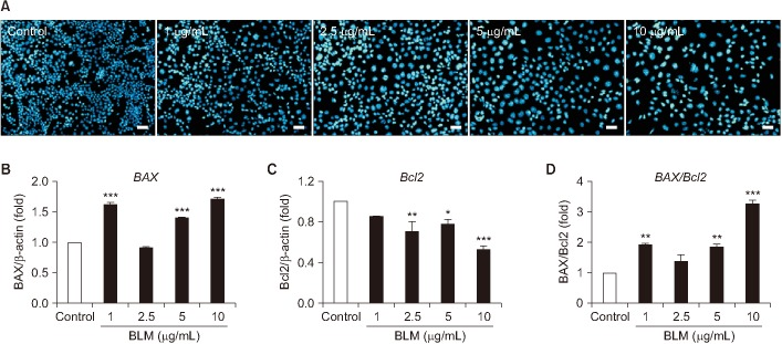 The MLE-12 cells induced apoptosis by bleomycin (BLM). (A) MLE-12 cells were stained with Hoechst 33258 staining after BLM treatment for 24 hours. Scale bars=100 µm. Expression of cell apoptosis marker, BAX (B) and Bcl2 (C) was measured by quantitative real-time reverse transcription-polymerase chain reaction (qRT-PCR). BAX/Bcl2 ratio (D) was divided (B, C) that measured by qRT-PCR. * p
