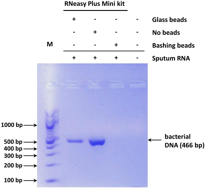 Representative gel electrophoresis of PCR reactions using universal bacterial primers and sputum <t>RNA</t> isolated with the <t>RNeasy</t> Plus Mini kit. Sputum cells were either subjected or not to bead vortexing (bashing or glass beads) prior to RNA isolation. Bands representing contaminating bacterial DNA are indicated. M: molecular weight marker.